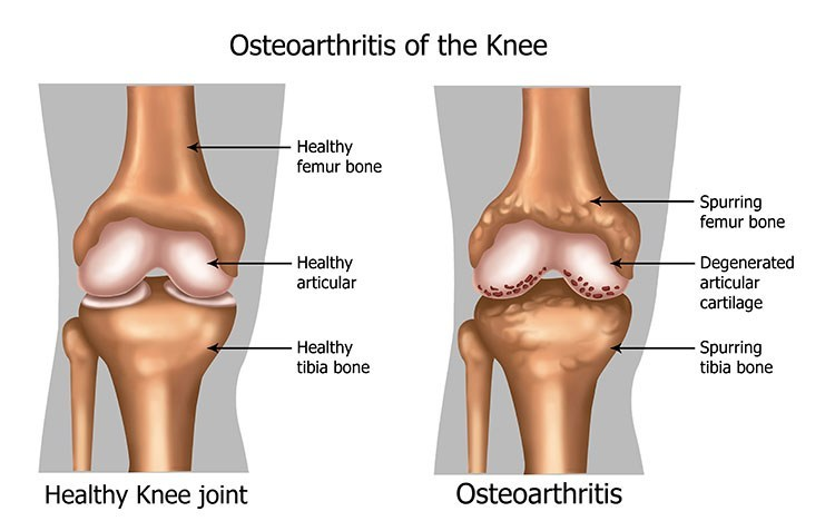 Osteoarthritis Pain Relief In Saratoga Springs, NY - Saratoga Springs  Acupuncture Clinic