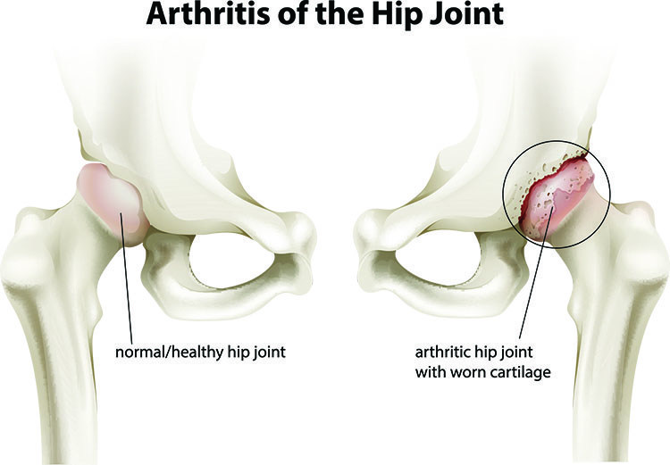 Arthritis Pain Relief In Saratoga Springs, NY - Saratoga Springs  Acupuncture Clinic