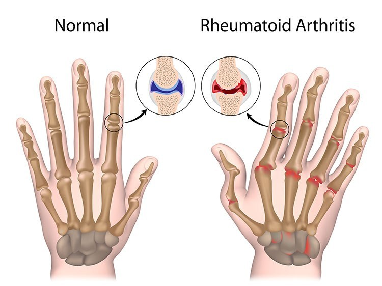 Rheumatoid Arthritis Pain Relief In Saratoga Springs, NY - Saratoga Springs  Acupuncture Clinic