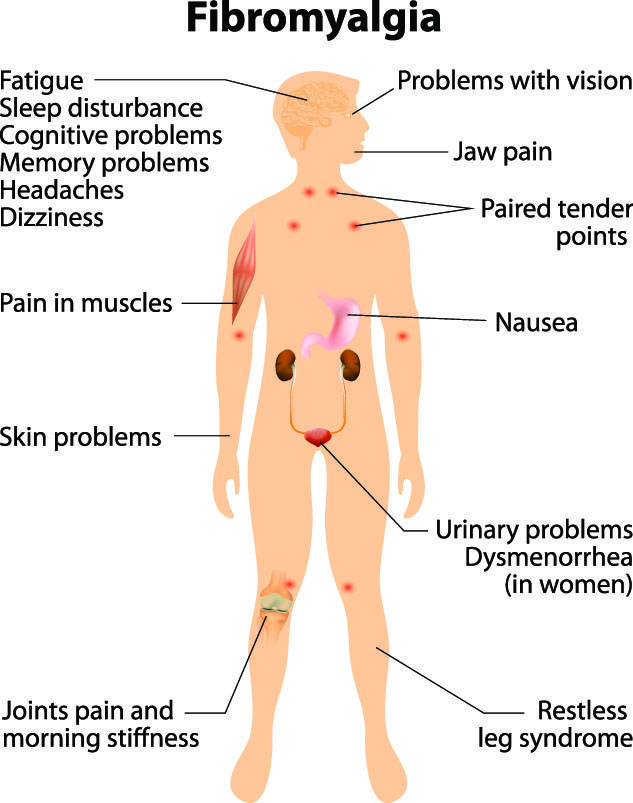 Fibromyalgia Natural Treatment With Chinese Medicine - Saratoga Springs  Acupuncture Clinic